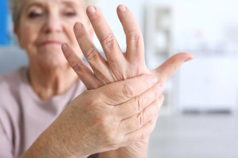 artritis prevencion